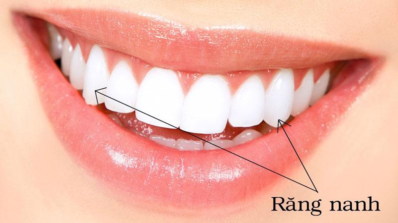 Răng nanh là răng số 3 trên cung hàm