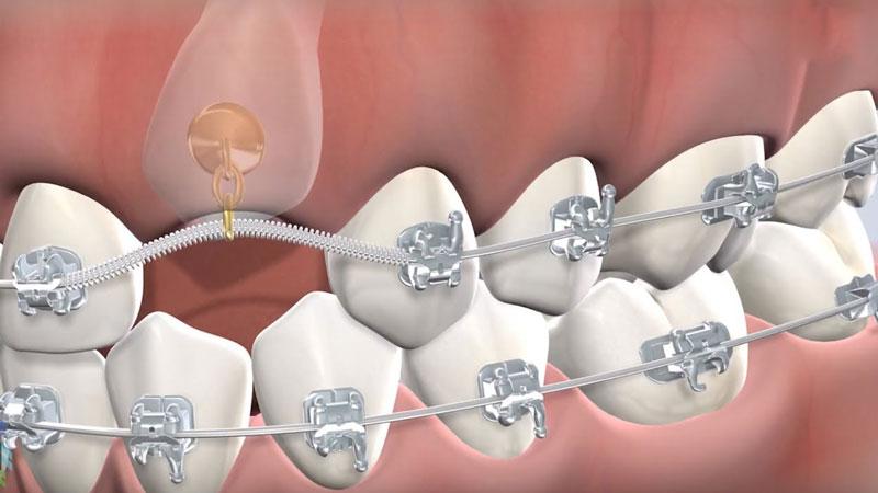 Nên niềng răng mọc ngầm, mọc lệch thay vì nhổ răng