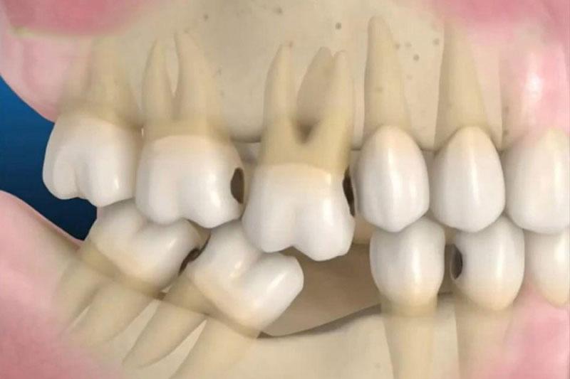 Mất răng dẫn đến tiêu xương hàm