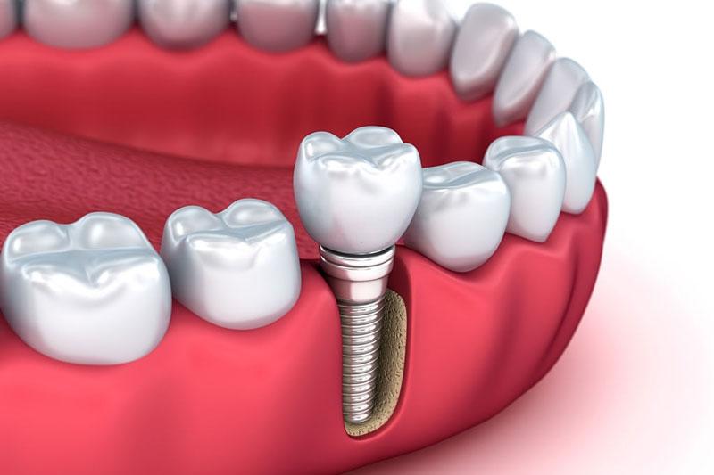 Nên trồng răng Implant để phục hình ngay sau khi mất răng