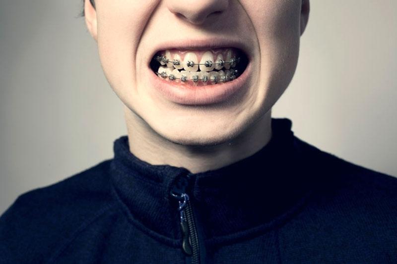Niềng 4 răng hay 6 răng cửa có được không? Giá bao nhiêu tiền?