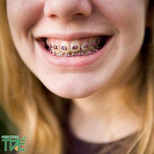 Niềng răng bị gò má cao | Nguyên nhân và cách khắc phục