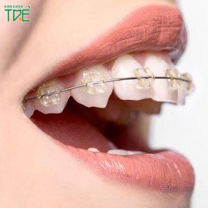 Có nên niềng răng mắc cài sapphire không?