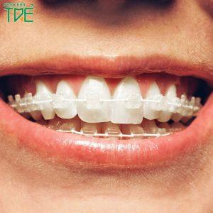 Niềng răng mắc cài sứ dây trong giá bao nhiêu?