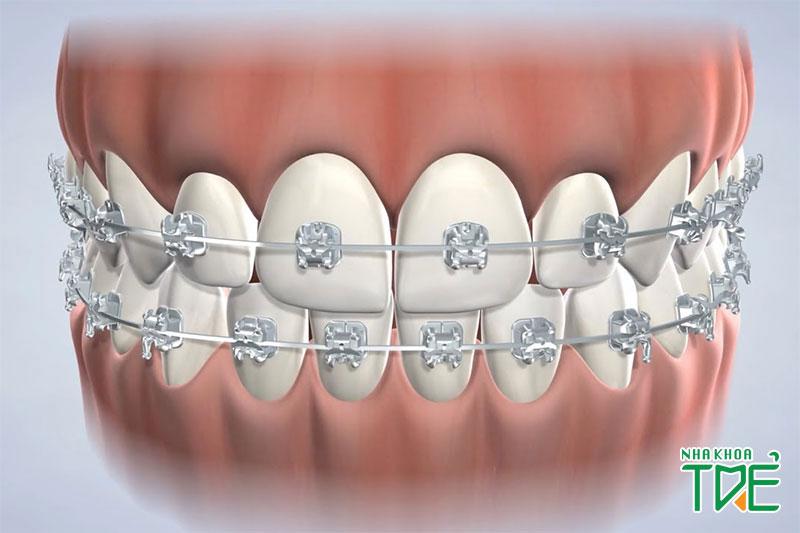 Hệ thống nắp đóng mở tự động giúp cố định vững chắc dây cung trên răng
