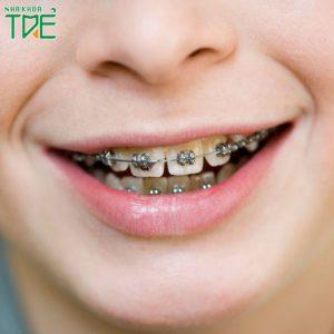 Niềng răng mắc cài titan là gì? Quy trình niềng răng mắc cài titan như thế nào?