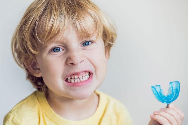 Niềng răng silicon nhằm định hướng các răng mọc lên đúng vị trí