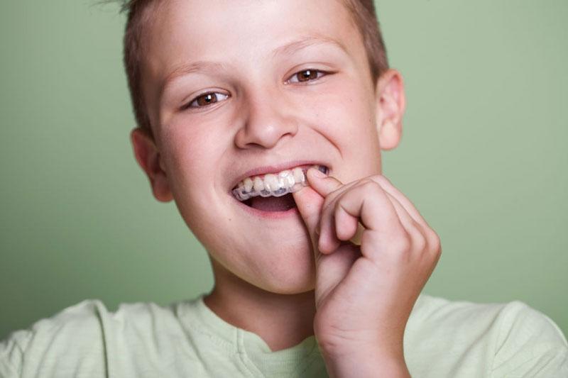 Hàm răng đã mọc hoàn thiện thì nên niềng răng trong suốt để nắn chỉnh răng