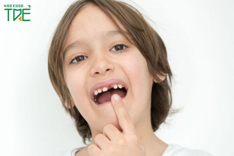 Quá trình mọc răng vĩnh viễn ở trẻ diễn ra như thế nào?