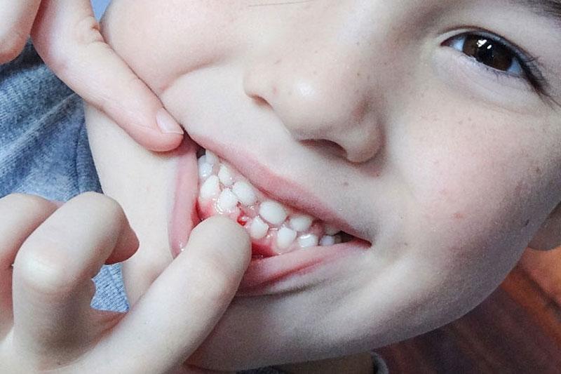 Răng cửa sẽ mọc nhanh hơn răng hàm vĩnh viễn