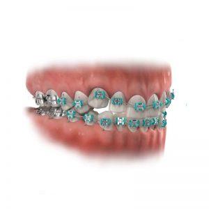 Quy trình niềng răng khấp khểnh diễn ra như thế nào?