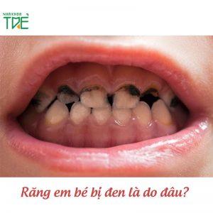 Răng em bé bị đen là do đâu? Cách khắc phục như thế nào?
