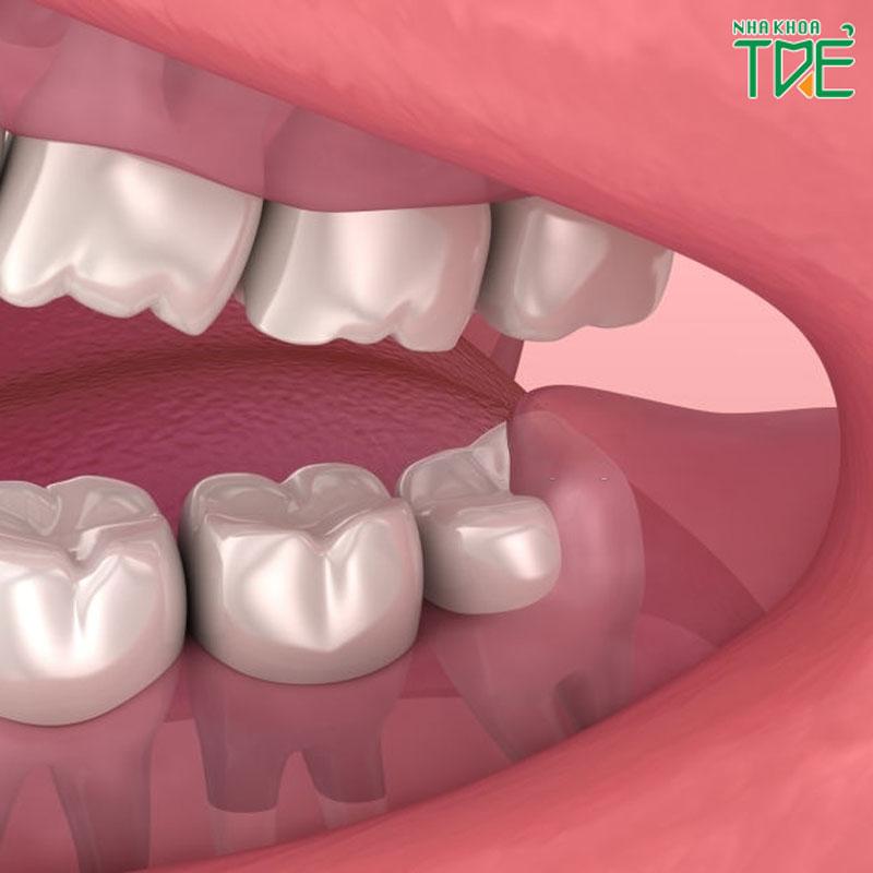 Răng khôn có nên nhổ không? Khi nào thì bắt buộc phải nhổ răng khôn?