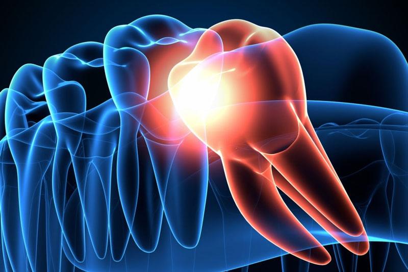 Răng khôn mọc lệch gây ra nhiều biến chứng nguy hiểm