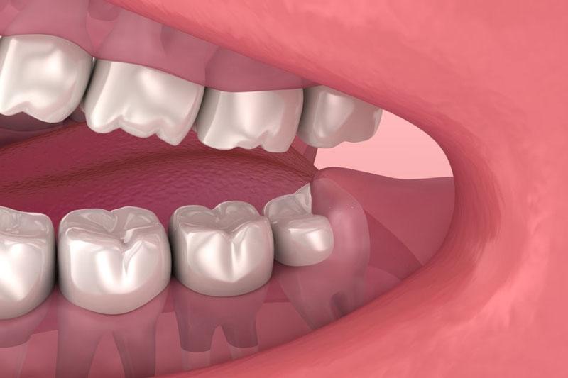 Răng khôn là răng vĩnh viễn số 8 chỉ mọc 1 lần duy nhất