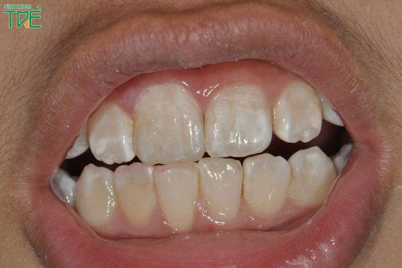 Răng nhiễm Fluor là gì? Cách xử lý như thế nào?