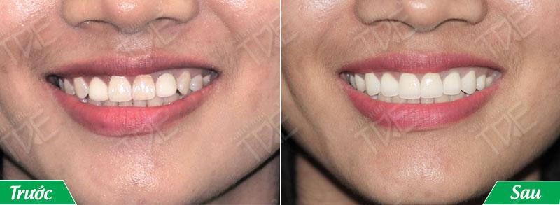 Bọc răng sứ khắc phục tình trạng răng nhiễm fluor