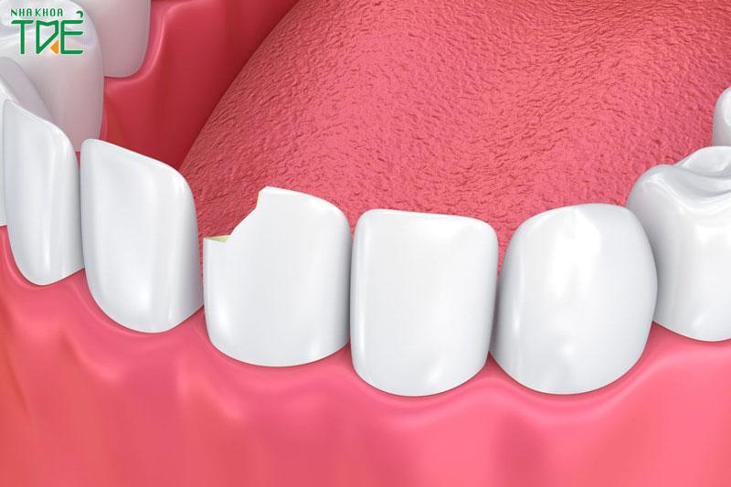 Răng sứ bị sứt vỡ có hàn được không?