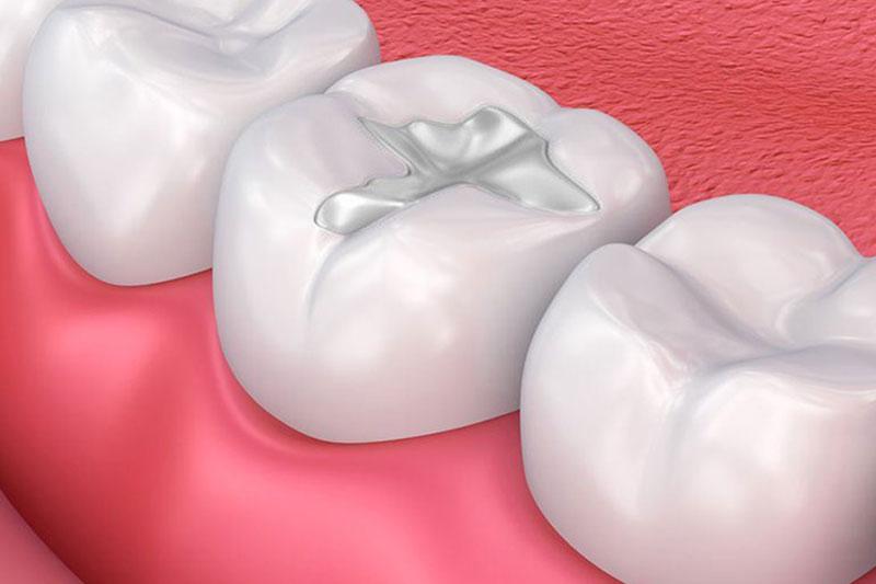 Hàn trám răng không hiệu quả đối với răng sứ bị sứt mẻ
