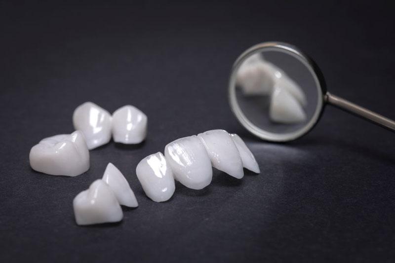 Lựa chọn loại răng sứ chất lượng cao