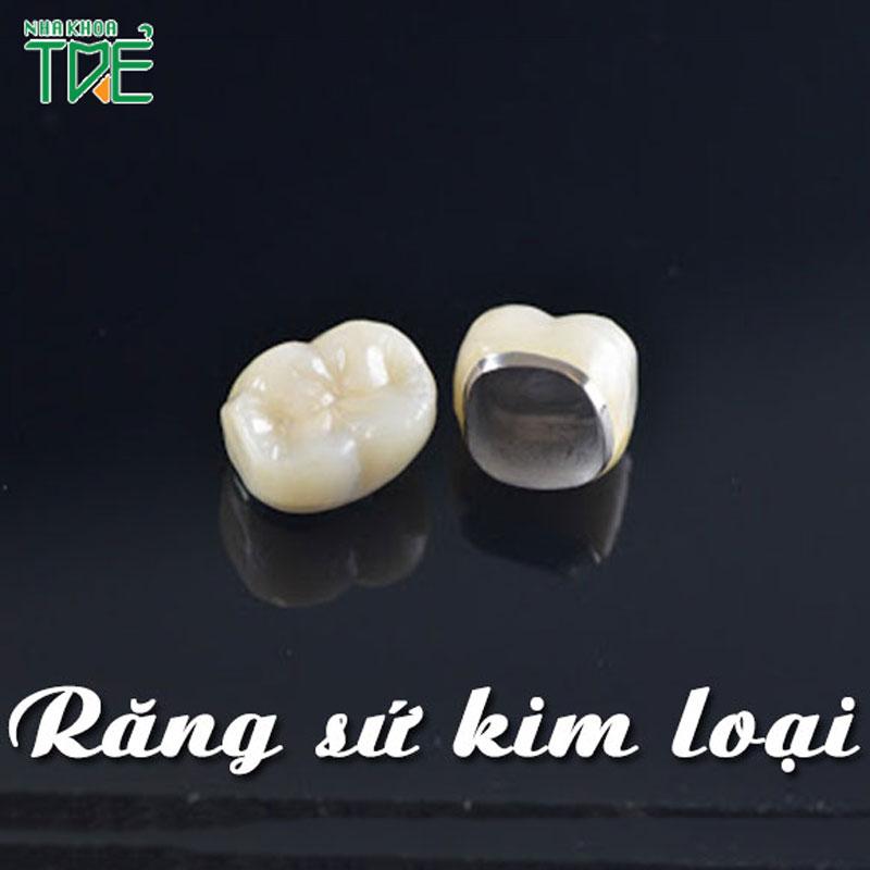 Răng sứ kim loại là gì? Bọc răng sứ kim loại giá bao nhiêu tiền?
