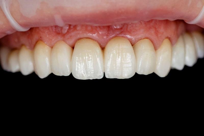 Răng sứ kim loại thường bị đen viền nướu