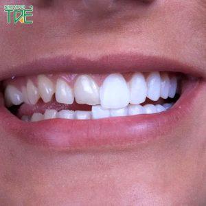 Răng sứ rơi ra ngoài phải làm sao?