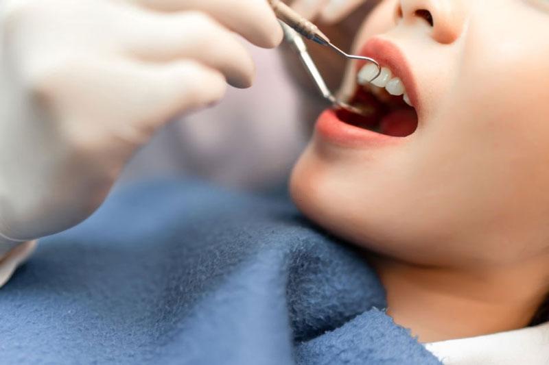 Răng sứ rơi ra ngoài có thể do tay nghề của bác sĩ kém