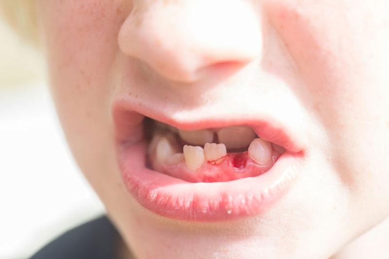 Răng vĩnh viễn mọc lệch lạc do mất răng sữa sớm