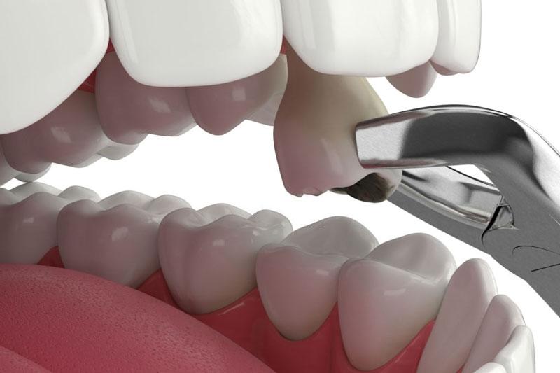 Răng vĩnh viễn bị sau nghiêm trọng sẽ phải nhổ răng