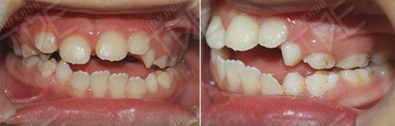 Răng khớp cắn hở gây sang chấn khớp cắn