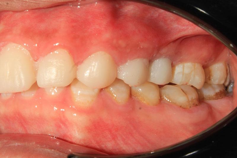 Nhận biết sự liên kết giữa các răng