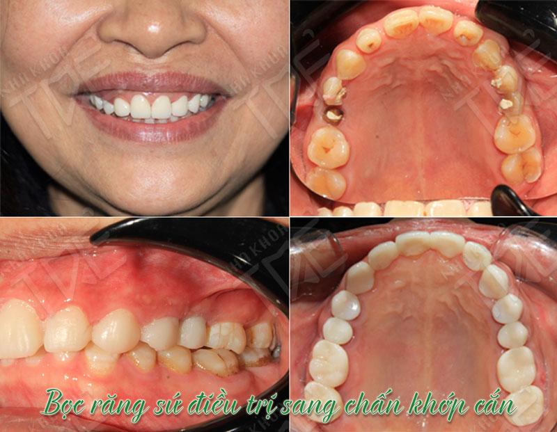 Bọc răng sứ điều trị sang chấn khớp cắn tại Nha khoa Trẻ