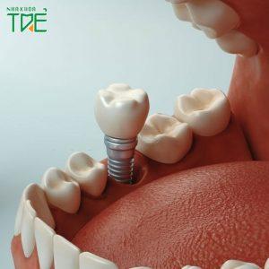 Sau nhổ răng thực hiện cấy ghép Implant tức thì như thế nào?