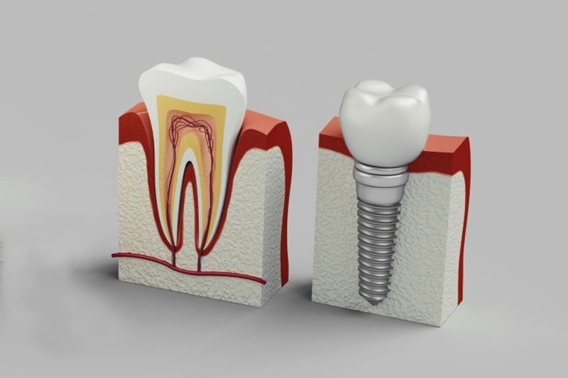 Trụ Implant được ghép trực tiếp vào xương thay thế chân răng