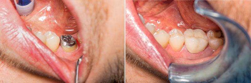 Thực hiện đồng thời nhổ răng và trồng răng Implant