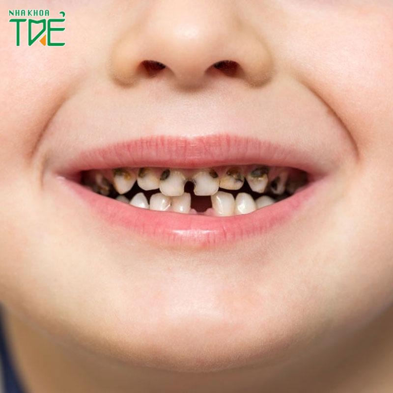 Sâu răng ở trẻ 2 tuổi: Nguyên nhân, cách phòng ngừa và điều trị