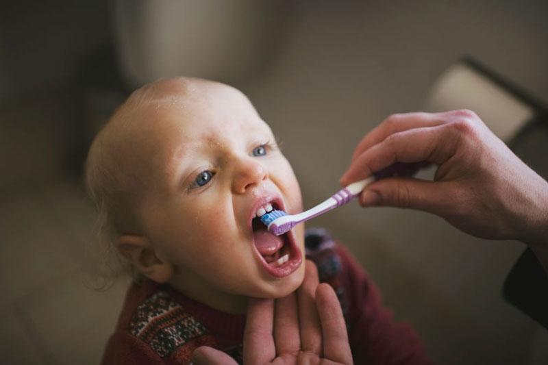 Sâu răng ở trẻ 2 tuổi có thể do chế độ vệ sinh răng miệng sai cách