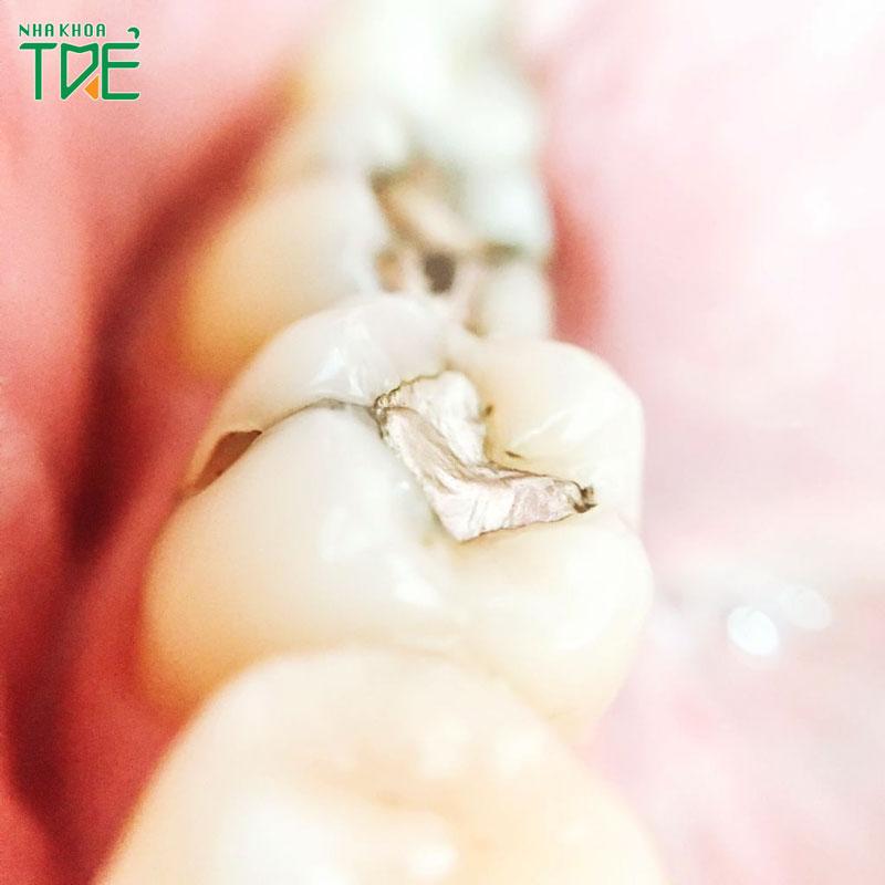 Trám răng giữ được bao lâu?