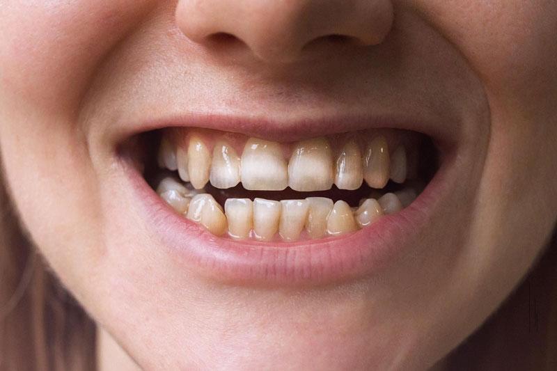 Răng nhiễm màu Fluor làm mất thẩm mỹ trên răng