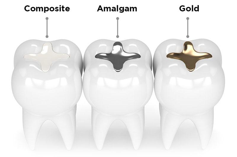 Trám răng giữ được bao lâu phụ thuộc vào vật liệu hàn trám