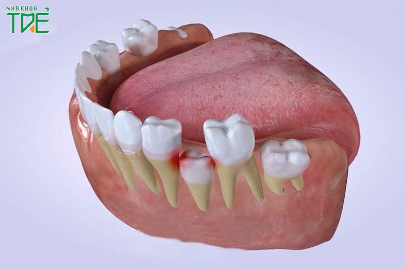 Răng hàm số 6, 7 mọc lên không qua giai đoạn thay răng