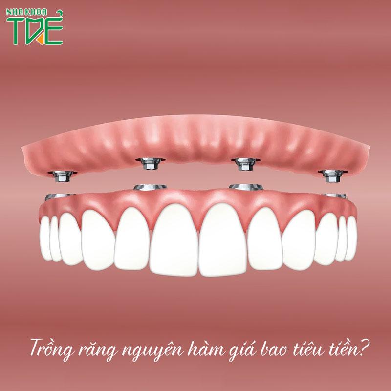 Trồng răng nguyên hàm giá bao nhiêu tiền?