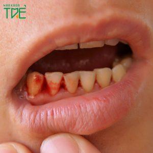 Tụt lợi chảy máu chân răng phải làm sao?
