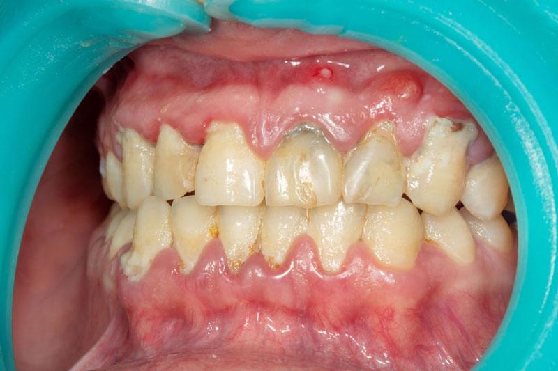 Tụt lợi làm chân răng ngày càng lộ nhiều hơn