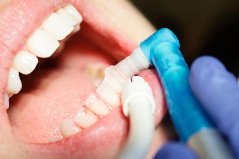 Cần thực hiện lấy cao răng và đánh bóng đối với trường hợp nhẹ