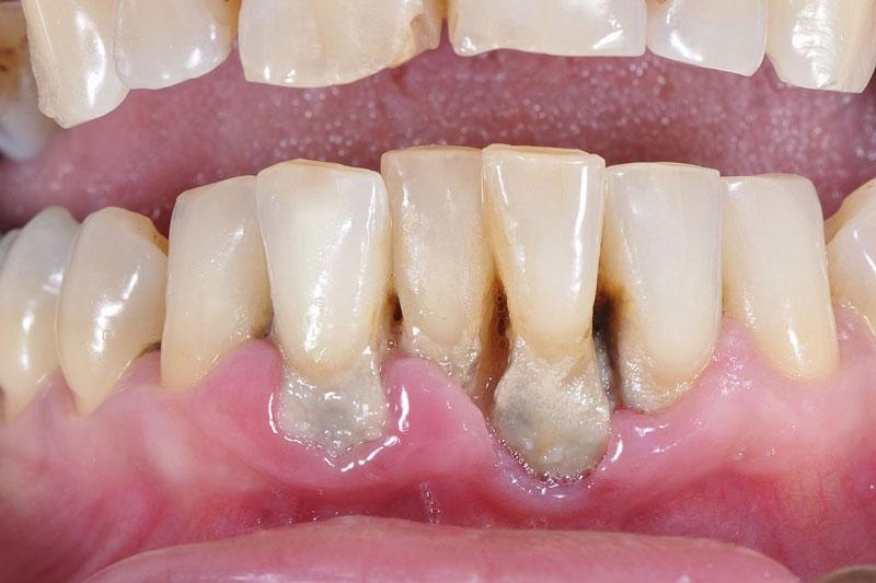 Tụt lợi làm hở cổ chân răng khiến răng lung lay
