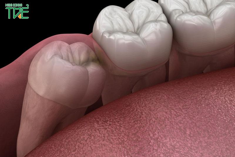 Viêm lợi trùm răng khôn uống thuốc gì để giảm đau, giảm sưng?