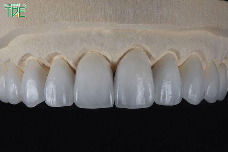 Răng sứ cao cấp được nhiều khách hàng tin tưởng và lựa chọn