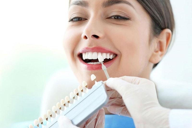 Răng sứ cao cấp có dải màu đa dạng để bạn lựa chọn